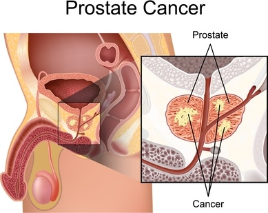 Diet and Other Main Considerations for Preventing Prostate Cancer