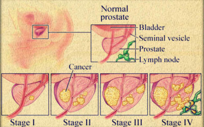 The Brief But Valuable Information about the Prostate Cancer