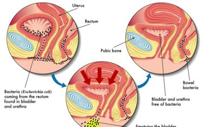 The Brief Information About Urinary Tract Infections