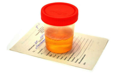 What is Blood in the Urine?
